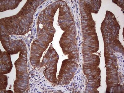 GARS Monoclonal Antibody (OTI6C5)