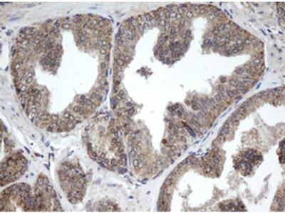 PPT1 Monoclonal Antibody (OTI1A10)