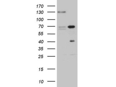 ZNF655 Monoclonal Antibody (OTI6H9)