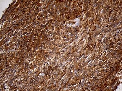 PYGM Monoclonal Antibody (OTI3F9)