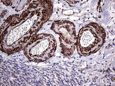 TRMT12 Monoclonal Antibody (5C9)