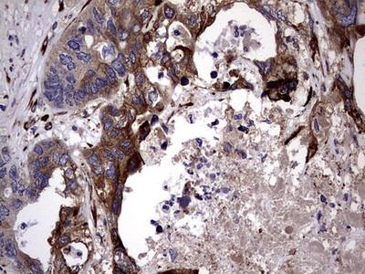 PLOD2 Monoclonal Antibody (OTI6D1)