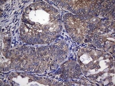 TRIM56 Monoclonal Antibody (OTI8E12)