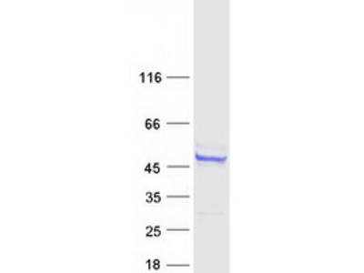 ARMC6 MS Standard C13 and N15-labeled recombinant protein (NP_219483)