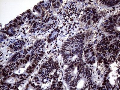 ANP32C Monoclonal Antibody (OTI10A10)