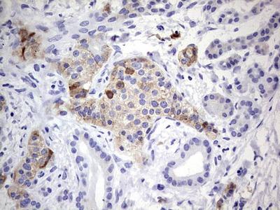 N4BP2L2 Monoclonal Antibody (OTI5C5)