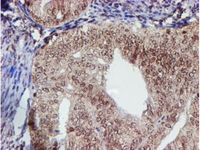 CYP17A1 Monoclonal Antibody (OTI3F11)