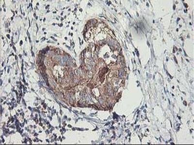 MTFMT Monoclonal Antibody (OTI1E7)