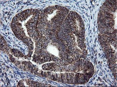 SnoN Monoclonal Antibody (OTI2F6)