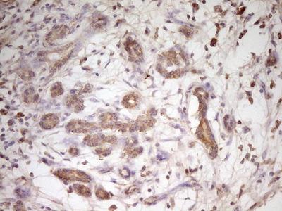 TRIB3 Monoclonal Antibody (OTI3F3)