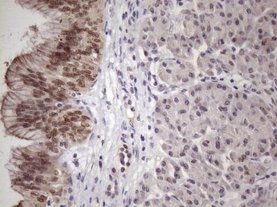 SRSF9 Monoclonal Antibody (OTI7F2)
