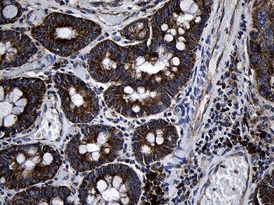 PCCA Monoclonal Antibody (OTI1E9)