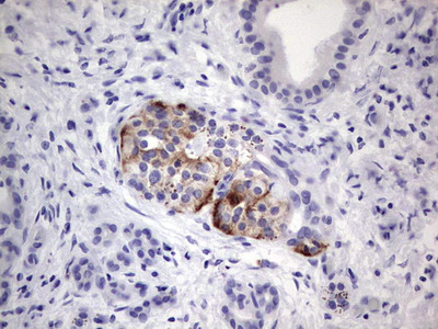 POMK Monoclonal Antibody (OTI2B10)