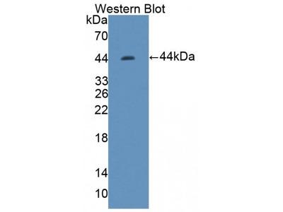 Three Prime Repair Exonuclease 1 (TREX1) Antibody