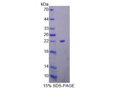 Human High Mobility Group Box Protein 4 (HMGB4) Protein