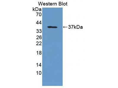 Histidyl tRNA Synthetase (HARS) Antibody