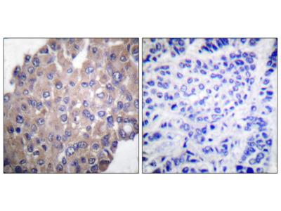 PLCG1 Antibody (pTyr771): APC