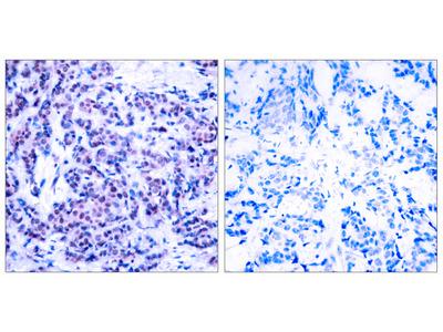 JunD Antibody (pSer255): Biotin