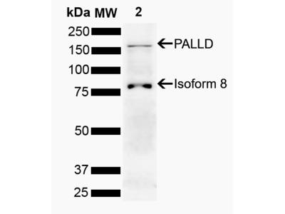Palladin Antibody