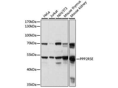 PPP2R5E Polyclonal Antibody