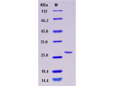 Recombinant Mouse SDPR Protein (aa 2-180, His tag)