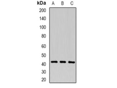 Anti-P2Y1 Antibody