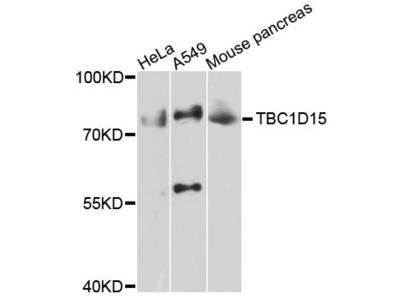 TBC1D15 Polyclonal Antibody