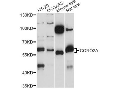 CORO2A Polyclonal Antibody