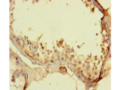 KCNK16 Antibody