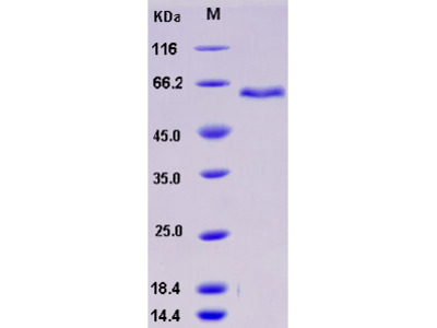 Recombinant Mouse ADAM9 Protein (His tag)
