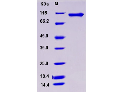 Recombinant Human STK23 / MSSK1 / SRPK3 Protein (His & GST tag)