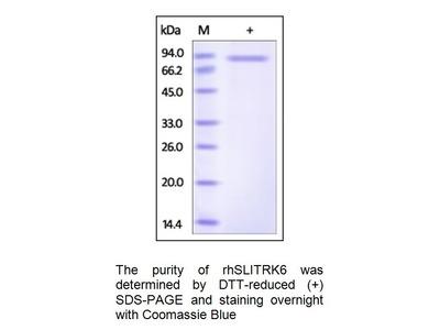 Human CellExp SLITRK6; human recombinant