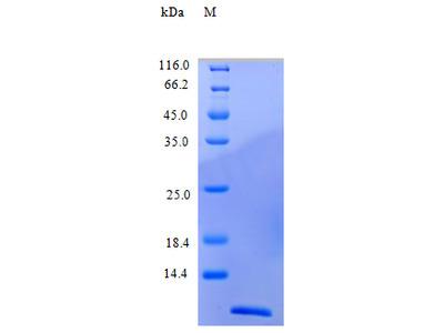 Recombinant Human C-C motif chemokine 22 protein (CCL22) (Active)