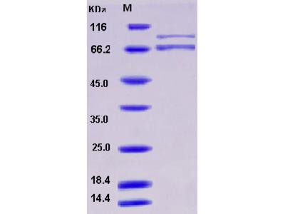 Recombinant Human XRCC5 & XRCC6 Heterodimer Protein