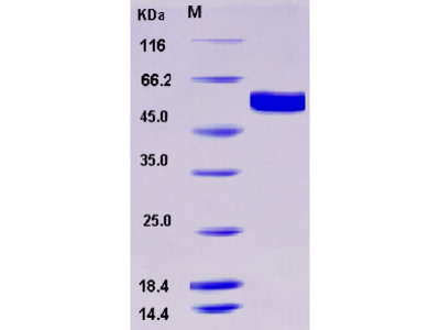 Recombinant Human FUT8 Protein (aa 68-575, His tag)