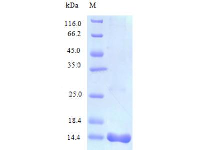 Recombinant Human C-C motif chemokine 25 protein (CCL25) (Active)