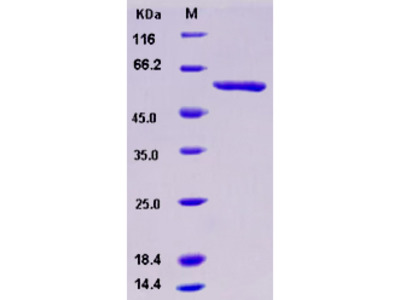 Recombinant Human SMYD3 / ZMYND1 Protein (GST tag)