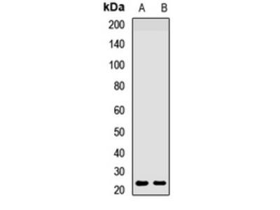 Anti-HAND2 Antibody