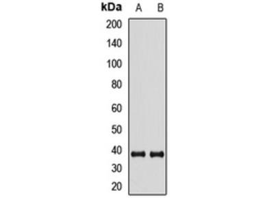 Anti-XLF Antibody
