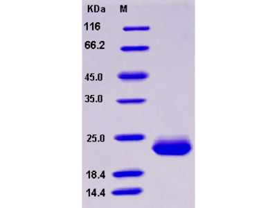 Recombinant Human SECTM1 / K12 Protein (His tag)