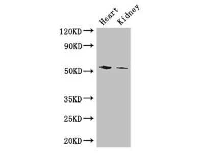 CYP11B1 Antibody
