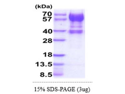 IL15RA, 31-205aa, Human, hIgG-His-tag, Baculovirus