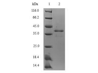 Recombinant Mouse Protein S100-A8 (S100a8)