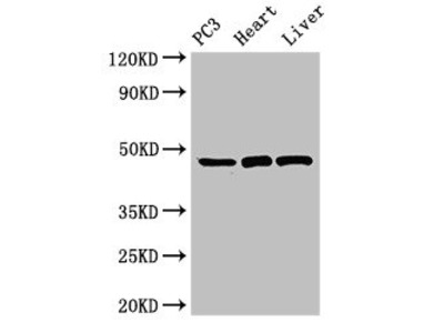 ARRB2 Antibody