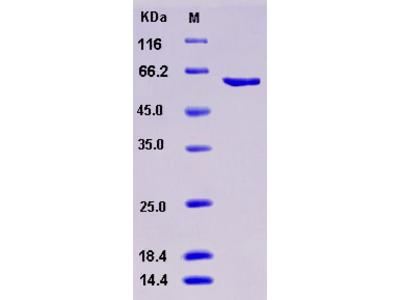 Recombinant Human MUSK Kinase Protein (aa 433-783, His & GST tag)