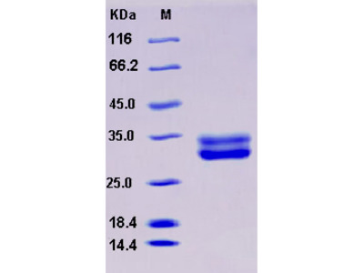 Recombinant Mouse JAM3 / JAM-C Protein (His tag)