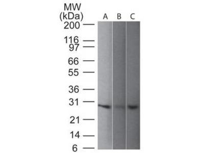 Mouse Anti-UchL1 Antibody