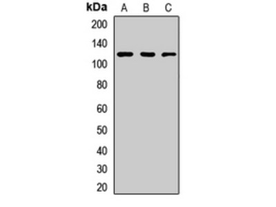 Anti-TIF1 beta Antibody