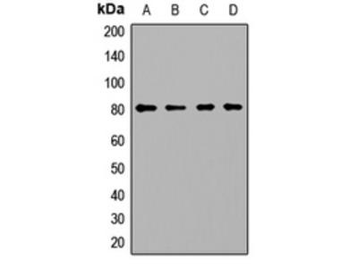 Anti-PCCA Antibody