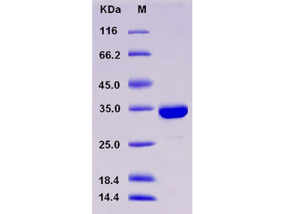 Recombinant Human SULT1A3 Protein (His tag)
